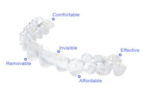 invisable braces