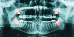 wisdom teeth removal Castle Rock